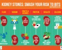 Kidney Stones: Smash Your Risk To Bits!